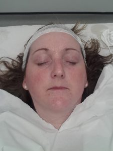 Ok not an attractive shot but this is me having the treatment and you can see the darkness around my eyes in this picture