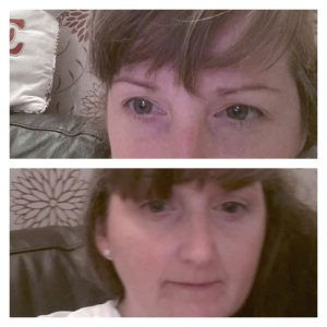 Top is me normally and generally looks as though under my eyes are bruised- especially on a bad day. Bottom is me 1 or 2 days after my peel and you can see that without any make up most of the darkness under my eyes has disappeared
